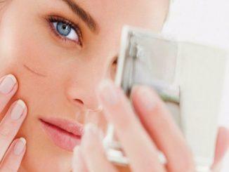 estetik dikiş nedir, estetik dikiş hangi durumlarda kullanılır, estetik dikişin farkı nedir