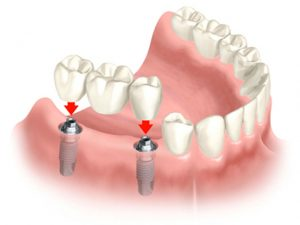 implant fiyatları ne kadar, implant fiyatları neye göre değişir, implant fiyatları neden farklıdır