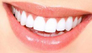 lamine diş fiyatı, lmaine diş yaptırma, lamine diş fiyatları ne kadar