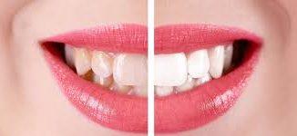 zirkonyum diş yaptırma, zirkonyum diş rengi, zirkonyum diş renkleri nasıl
