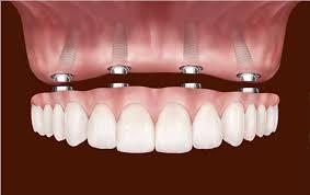 implant nedir, implant neden yapılır, implantın faydaları nelerdir