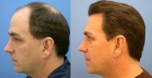 saç ekiminde önemli olanlar, saç ekimi yapımı, saç ekimi yaptırma