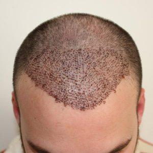 saç ekimi doktoru, saç ektirme, saç eken doktorun tecrübesi