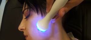mavi ışık lazer epilasyon, lazer epilasyon yapımı, lazer epilasyon nasıl yapılır