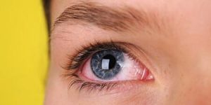 Göz tansiyonu , göz tansiyonu belirtileri , tansiyon , tansiyon belirtileri