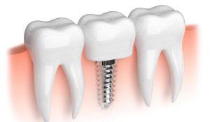 implant diş fiyatları, implant diş yapımı, implant diş yaptırma fiyatları