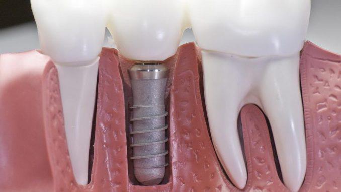 implant yapımı, protes diş, implant üstü protez diş