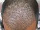 fue saç ekimi, saç ekim fiyatları, fue saç ekim fiyatı