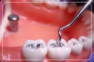 diş tedavisi, diş dolgusu yapımı, diş dolgusu nasıl yapılır