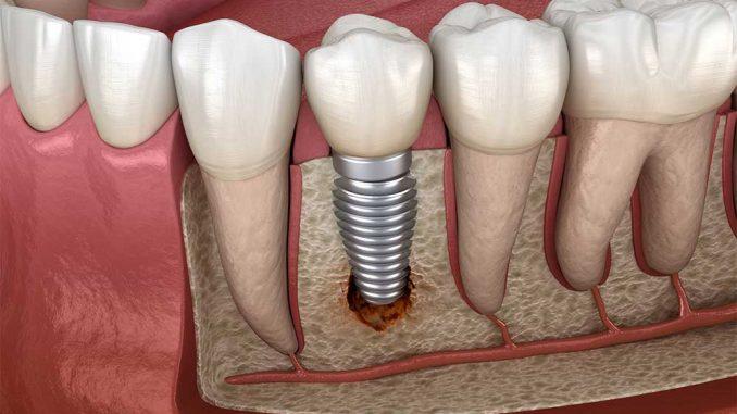 implant tedavisi yapımı, implant tedavisi nasıl olur, implant yaptırma