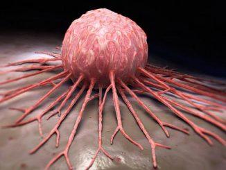 """Kanserde hızlı tanı hızlı tedavı Kanser, tek bir hastalık değil, bir grup hastalıktır. Yaklaşık 200 ana grup ve bunların birçok alt grubu tanımlanmıştır. Başka bir deyişle, tanı koyarken dikkate alınması gereken birçok ayrıntı vardır. Her kanser türünü doğru isimlendirmek önemlidir çünkü kullanacağımız tedaviler kanserin türüne ve her hastaya göre farklılık gösterebilir. Kanseri oluşturan anormal hücreler kontrolsüz bir şekilde çoğalır. Bu hücrelerden kanserin türünü teşhis etmek için bir patoloğa ihtiyaç vardır. Bu şekilde kanser süreci ile ilgili ilk tespit yapılır ve hastanın şüpheli bölgesinden biyopsi yapılır ve tümör hücrelerinden örnekler alınır. Mikroskop altında biyopsi yaparak tümör hücreleri hakkında nihai kararı vermek için, tümör hücrelerinin mikroskop altında incelenebilmeleri için doku işleme adımlarından geçmeleri gerekir. Kumaşın işleme aşaması, kumaşa sıcaklık, basınç ve zaman kontrollü otomatik sistemlerle birçok kimyasal kullanılarak çok ince kesilmesine imkan veren bir sertlik kazandırır. Doku sertliğinden dolayı kanserden alınan biyopside hücreler standart 5 mikrometre kalınlığa kadar kesilebilir. Bu standart kalınlık, ışığın içinden geçmesine izin verdiği için kanser hücrelerinin mikroskop altında incelenmesine izin verdiği için kullanılır. Matris, sertleştirilmiş biyopsiyi desteklemek için kullanılır, böylece doku işleme adımı sırasında çok ince kesilebilir. Bu matris veya destek aynı zamanda parafin mumu (mum) olarak da bilinir. Balmumundaki tümör örnekleri bozulmadan oda sıcaklığında yıllarca saklanabilir ve gerekirse tekrar kullanılabilir. Kanserin tanı ve tedavisinde patolojinin rolü nedir? Modern tıptaki hastalık ve iyileşme sürecindeki ilerlemelerin önemli bir kısmı patolojiye odaklanmaktadır. 1200'lerde kullanılmaya başlanan büyüteç, zamanla sofistike bir yardımcı alete dönüşmüştür. Patolojik tanıda yeri doldurulamaz bir unsur. Buna """"mikroskop"""" diyoruz. Temelde bu cihaz bize; vücudumuzdan alınan küçük parçaları (biyopsiler olarak adlan"""