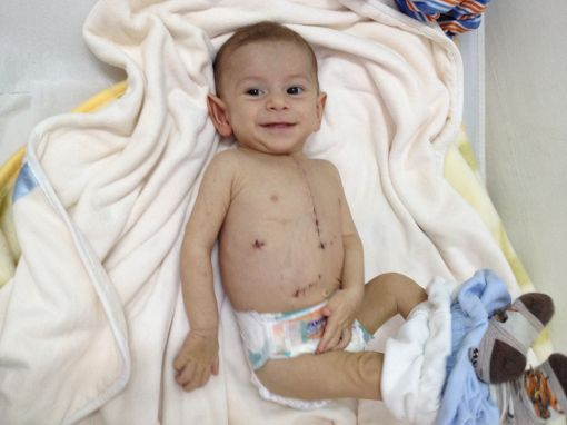çocuk kalp ameliyatı, çocuk kalp ameliyatı sonrası, çocuk kalp ameliyatı yapımı