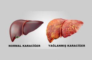 karaciğer yağlanması, karaciğer yağlanması nedenleri, karaciğer nasıl yağlanır