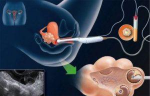 Tüp bebek nedir? Çiftler 1 yıl boyunca düzenli ve korunmasız cinsel ilişkiye rağmen gebe kalamazlarsa tıbbi muayeneden geçmeleri tavsiye edilir. Anne adayının 35 yaşında olması durumunda bekleme süresi 6 aydır. Hamileliğin doğal olarak ilerleyebilmesi için hormonların ve birçok farklı organın birlikte ve birbiriyle ve kadın üreme sistemi ile uyum içinde çalışması gerekir. Öncelikle beyindeki hipotalamus bölgesi beyindeki hipofiz bezini uyarır. Hipofiz bezi, LH ve FSH hormonlarını salgılar. Dolaşım sistemi yoluyla yumurtalıklara giren hormonlar, yumurtalık rezervindeki yumurta köklerini uyarır. Böylece yumurtaların bir kısmı olgunlaşma sürecine girer. En sağlıklı yumurta çatladığında, yumurtalık ile rahim arasındaki kanala, fallop tüplerine girer. Burada döllenmiş bir yumurtanın ömrü 24 saattir. Ancak erkek üreme hücresi olan sperm, bir kadının vücudunda 4-5 gün yaşayabilir. Sonuç olarak, yumurtlamadan önce veya yumurtlama gününde cinsel ilişki sırasında döllenme meydana gelebilir. Bu işlem sırasında yumurtayı içeren folikül östrojen salgılar ve rahim duvarının kalınlaşmasına neden olur. Döllenmeden sonra yumurta rahme girer ve embriyonun rahim duvarının kalınlaşmasına tutunmasıyla gebelik oluşur. Bu süreçte kadın ve erkek birçok üreme problemi yaşayabilir. Bu durumda çift, yardımcı üreme tedavi yöntemlerinden biri olan tüp bebek tedavi seçeneğini muayene ve testlerden sonra değerlendirebilir. Tüp bebek tedavisinde anne adayından alınan yumurtalar ve baba adayından alınan spermler laboratuvarda döllenir ve ortaya çıkan embriyo, embriyo transferi ile anne adayının rahmine yerleştirilir. Anne adayındaki beta-hCG seviyesi, yaklaşık 2 hafta sonra alınan bir kan testi ile ölçülür. Test sonucu gebeliğin başarılı olduğunu gösteriyorsa gebelik süreci başlar. Tüp bebek hamileliğinin doğal gebelikten hiçbir farkı yoktur. Hamilelik süreci her zamanki gibi devam ediyor. Tüp bebek nasıl yapılır? Ön koşullar nelerdir? Tüp bebek, laboratuvarda anneden toplanan yumurtaların müstakbe